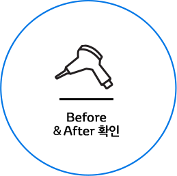 Before & After 확인